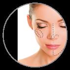 clinica cirugia estetica madrid - cirugia-facial