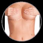 clinica cirugia estetica madrid - cirugia-mamaria