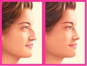 antes y depues de rinoplastia