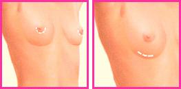 Mamoplastia de aumento clínica de cirugía estética en Madrid