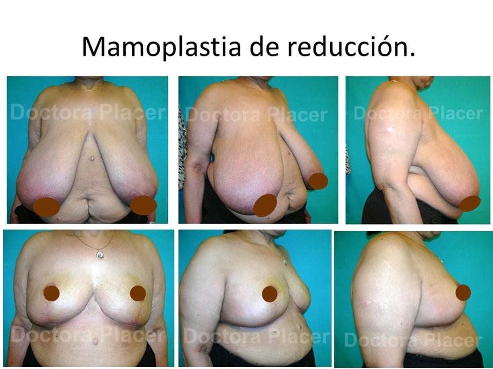 mamoplastia de reducción en la clínica de la dra. ainhoa placer