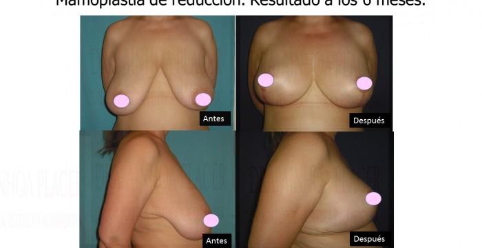 clínica de cirugía estética en Madrid Todo lo que necesitas saber sobre la mamoplastia de reducción