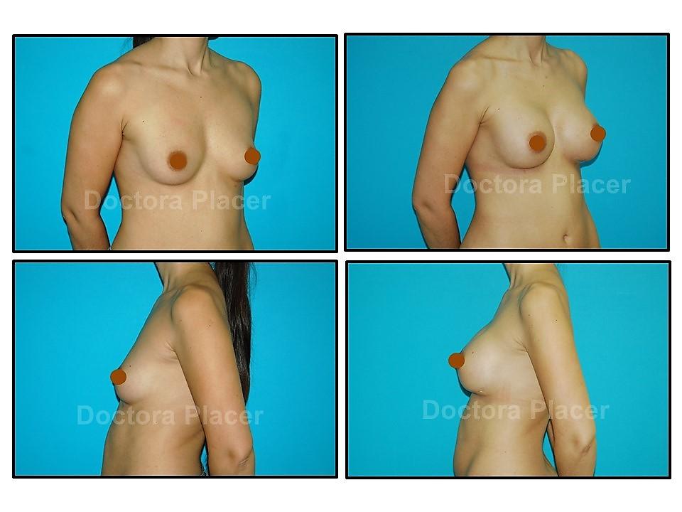 Aumento mamario con prótesis anatómicas de gel cohesivo de 215cc.