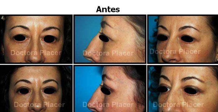 clínica de cirugía estética en Madrid Blefaroplastia: cirugía de los párpados para rejuvenecer su mirada.