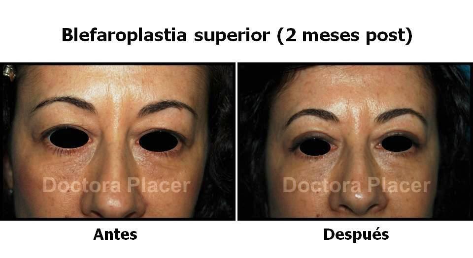 blefaroplastia-superior-frontal