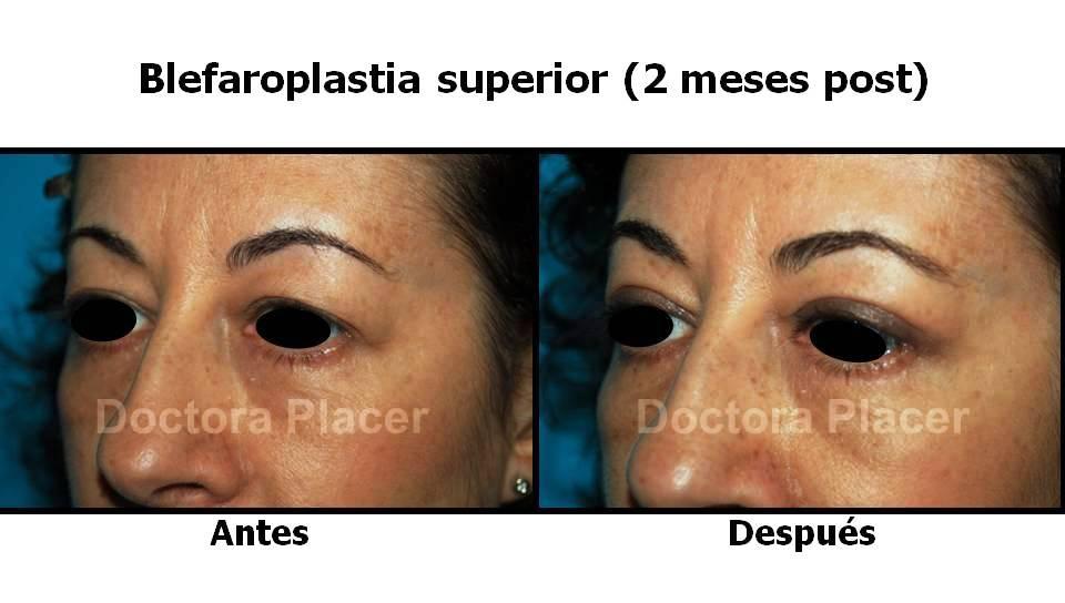 Blefaroplastia: cirugía de los párpados para rejuvenecer su mirada.