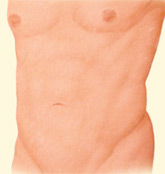 ejemplo de liposucción de abdomen y flancos