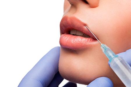 clínica de cirugía estética en Madrid relleno con ácido hialurónico - medicina estética en Madrid