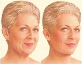 clínica de cirugía estética en Madrid lifting cervicofacial - clínica cirugía estética madrid