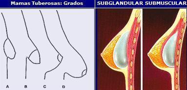 clínica de cirugía estética en Madrid mama tuberosa - clínica cirugía estética