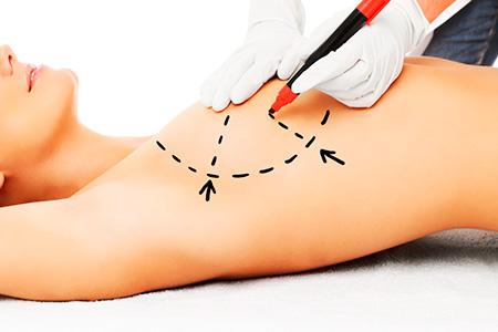 clínica de cirugía estética en Madrid mamoplastia cirugía mamaria en Madrid - Clínica de cirugía estética en Madrid