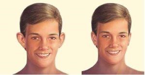clínica de cirugía estética en Madrid otoplastia en madrid antes y después - Dra. Placer