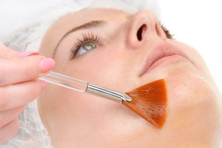 clínica de cirugía estética en Madrid tratamiento peeling químico - medicina estética en Madrid