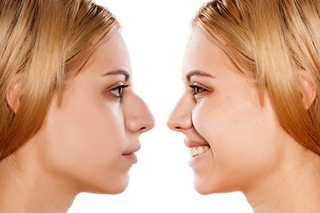rinoplastia cirugía facial en Madrid - clínica de cirugía estética en Madrid