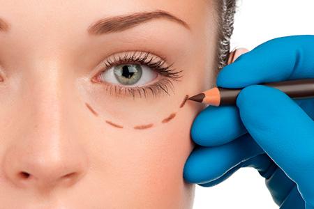 tratamientos estéticos - blefaroplastia - clínica de cirugía estética en Madrid Ainhoa Placer