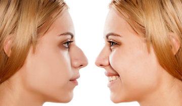 clínica de cirugía estética en Madrid cirugía facial rinoplastia en Madrid - Clínica estética en Madrid Dra. Ainhoa Placer