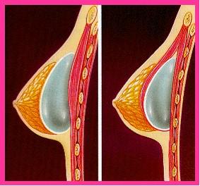 cirugía aumento de pecho en madrid